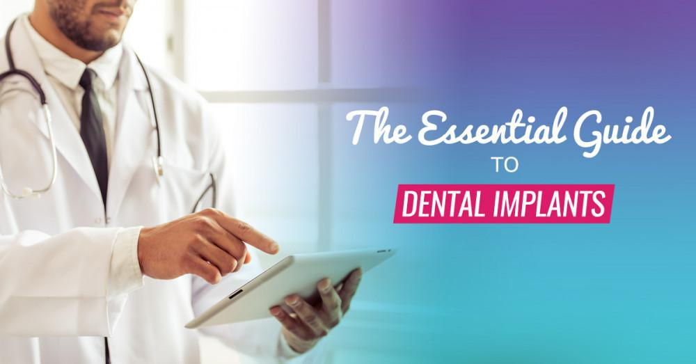 The Essential Guide to Dental Implants
