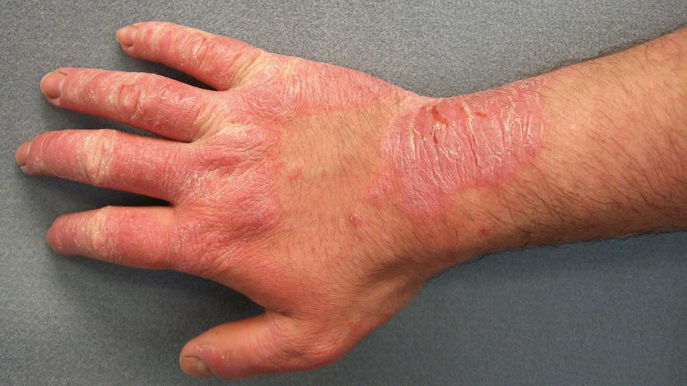 Hand Rashes Causes Tips Prevention Treatment Pine Belt