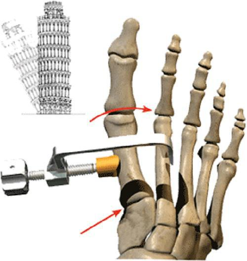 Imagine of the Lapiplasty® 3D Bunion Correction™ obtained from Treace Medical Concepts.