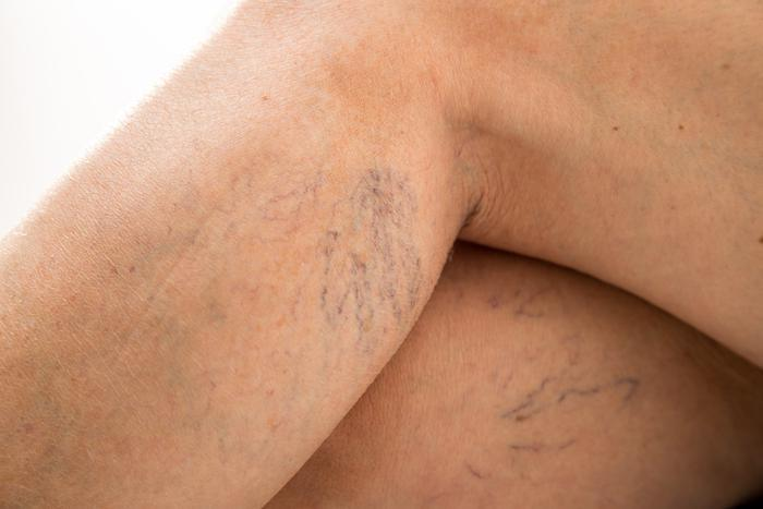 Restless Legs Syndrome, Venous Insufficiency, Comprehensive Vein Treatment Center