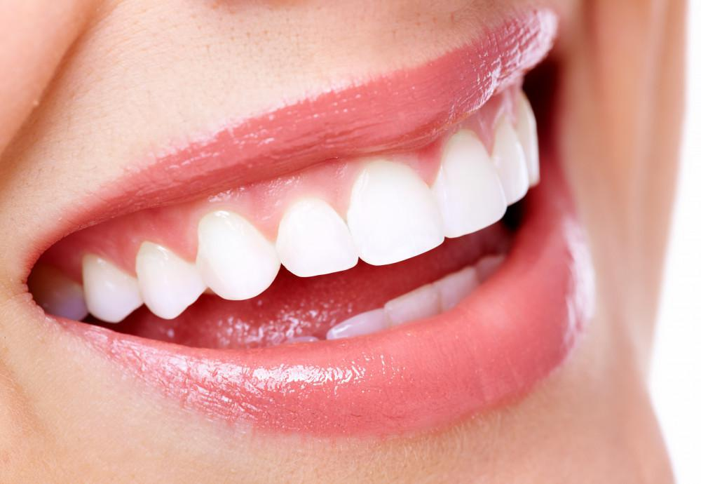 Professional Teeth Whitening Treatment, eagle river dental
