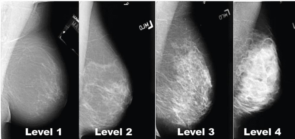 Mammogram Imaging