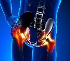 Hip Pain Specialist Dallas Tx Texas Orthopaedic Associates Llp Orthopaedic Surgery