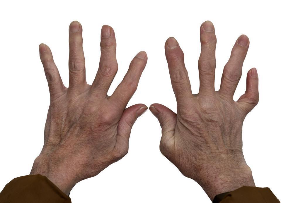 arthritis, Dr.Bojarski, stem cell therapy, Advanced Medical Physicians