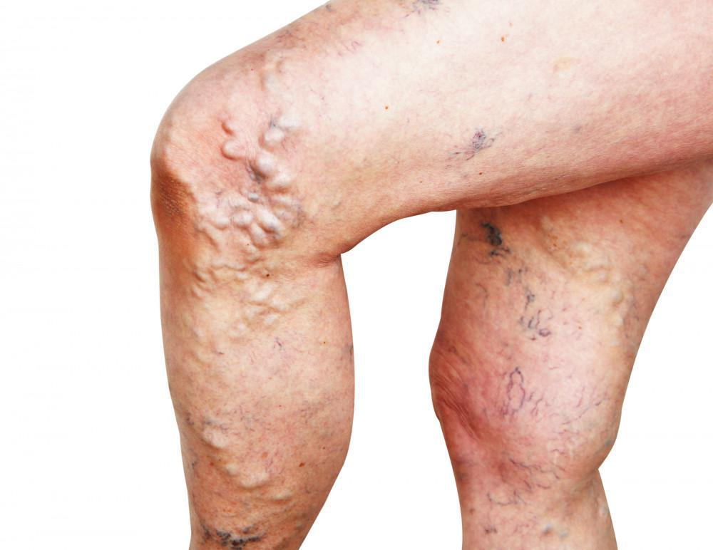Varicose Veins: Painful and Unsightly