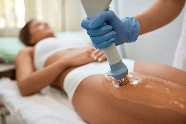 woman getting liposuction
