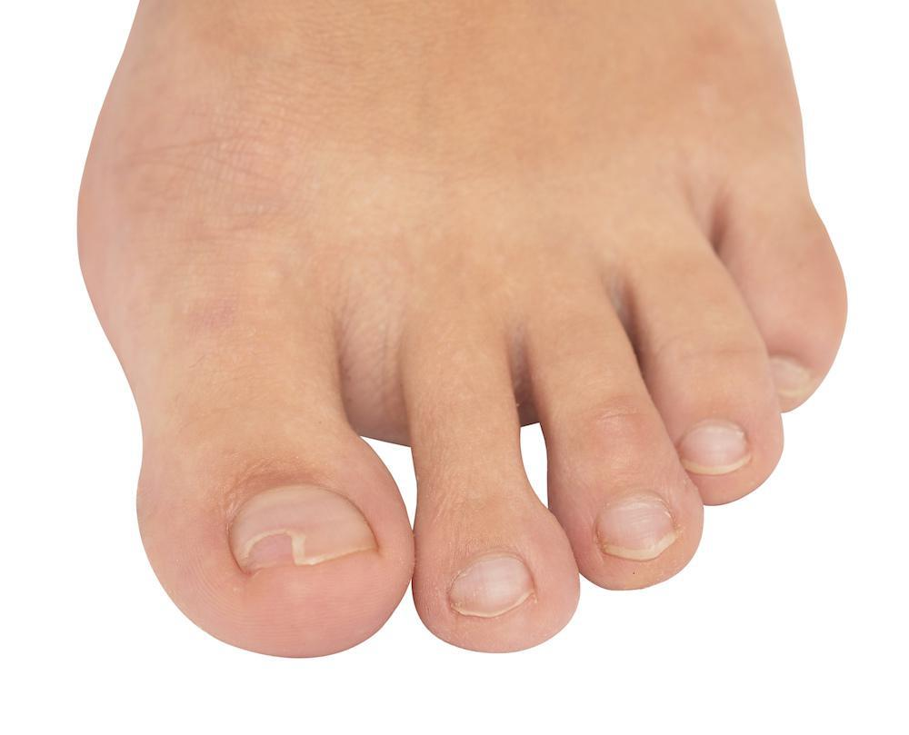 Ingrown toenails sometimes require a podiatrist in order to heal.