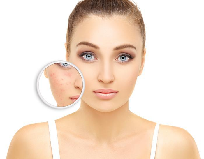 acne, IPL therapy, Dr. Aguirre
