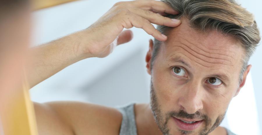 man examining his hair line