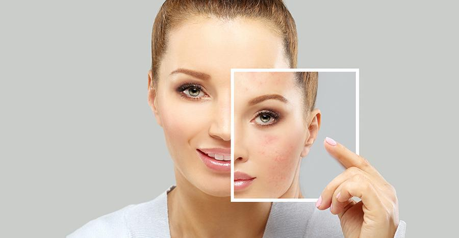woman holding photo of herself with acne
