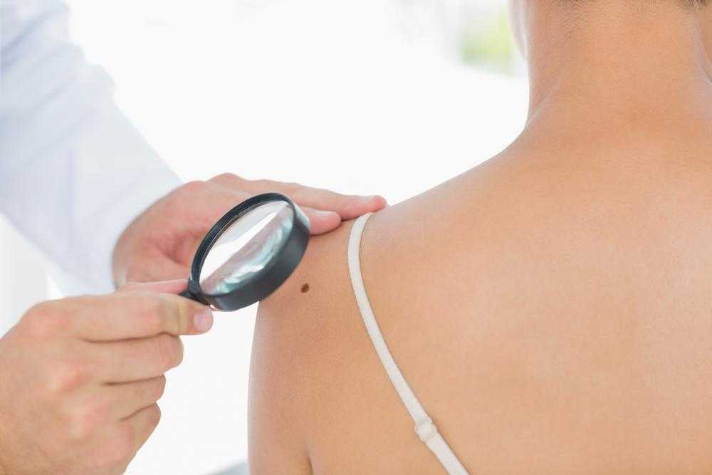 Skin moles should always be evaluated by a dermatologist.