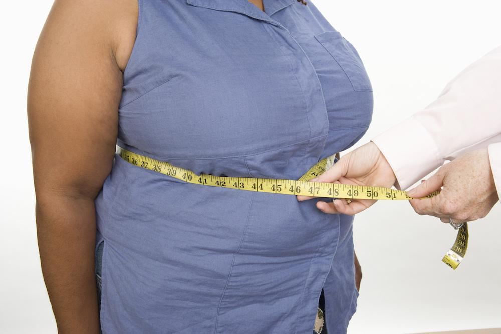 Bariatric surgery helps manage type 2 diabetes.