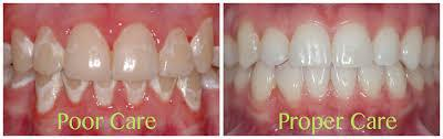 White spot on teeth after orthodontic treament