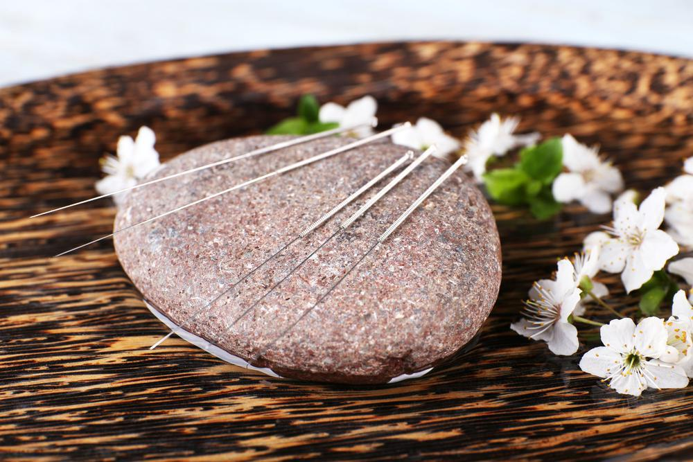 Acupuncture, Family Acupuncture and Wellness