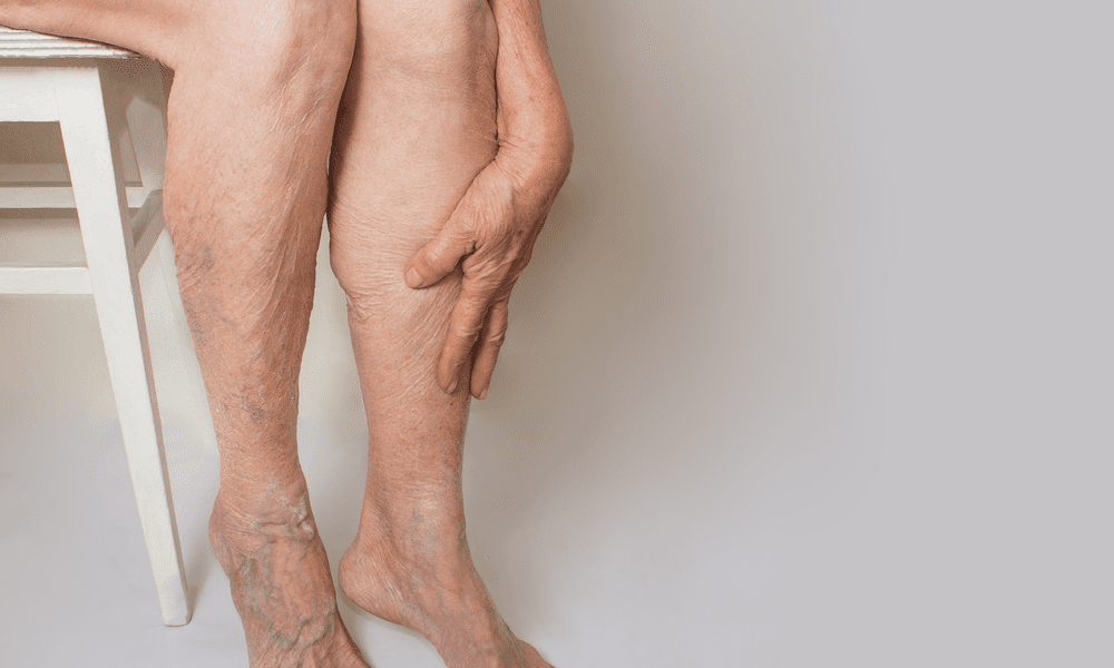 unsightly veins