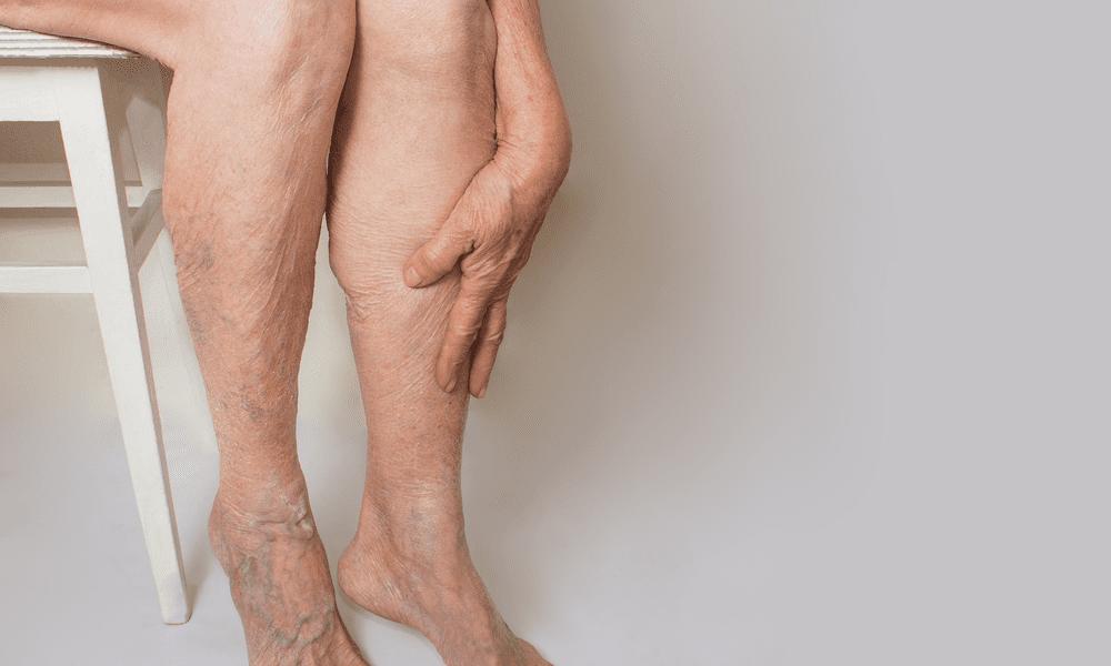 unsightly veins