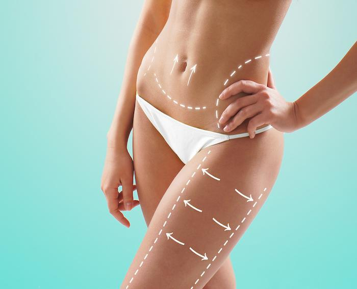 body sculpting, CoolSculpting