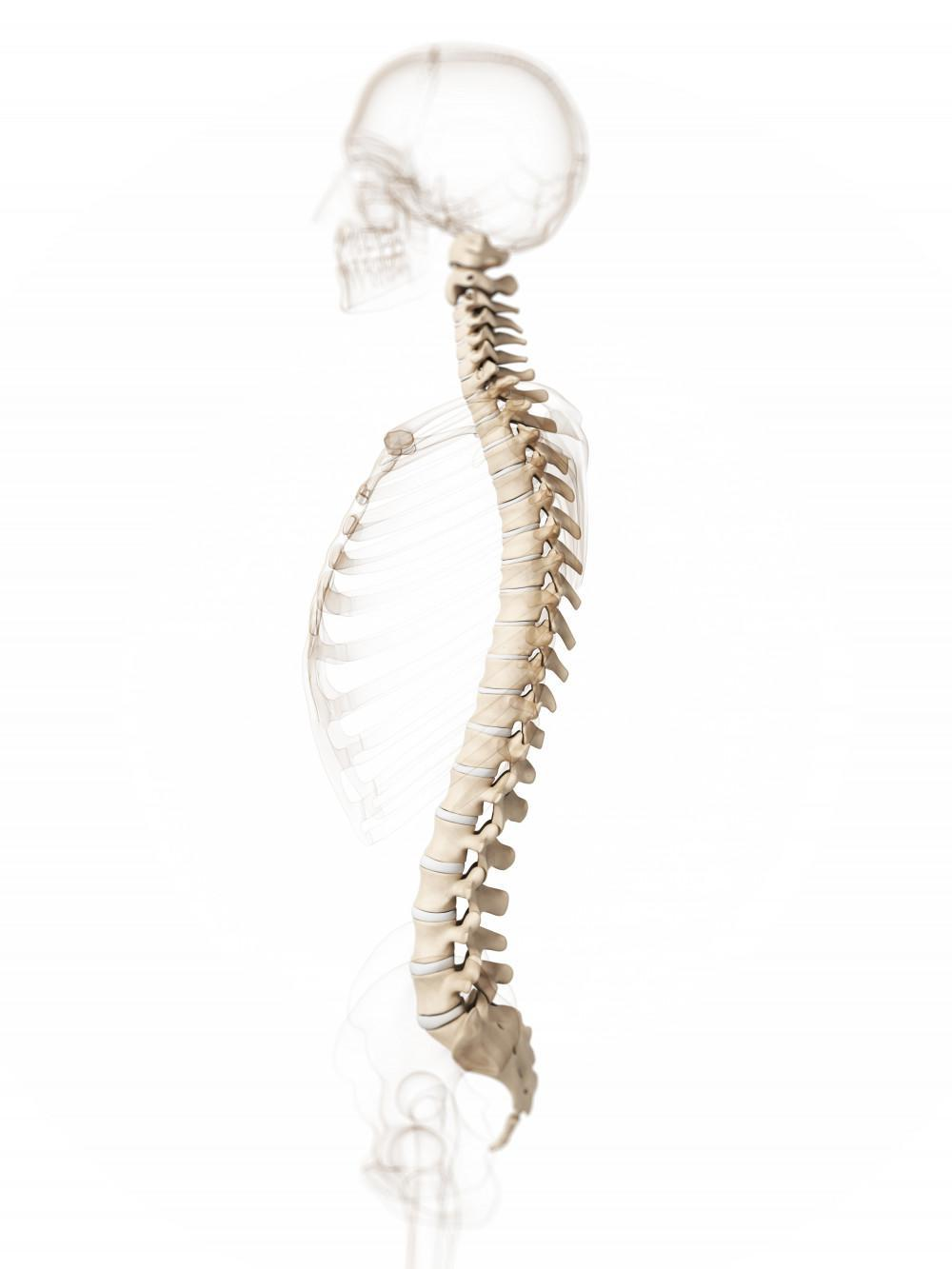 scoliosis, spine, back pain, Texas Spine Consultants