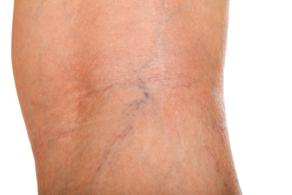 Dr. Naar at Premier Vein Clinic, venous ulcers