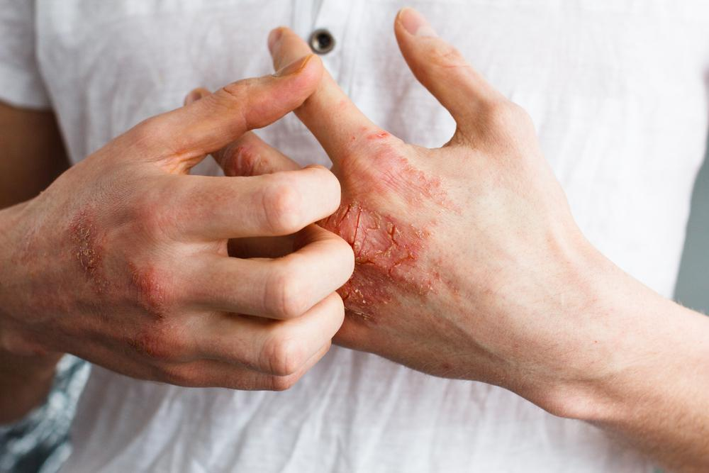 Winter Eczema Flare-Up