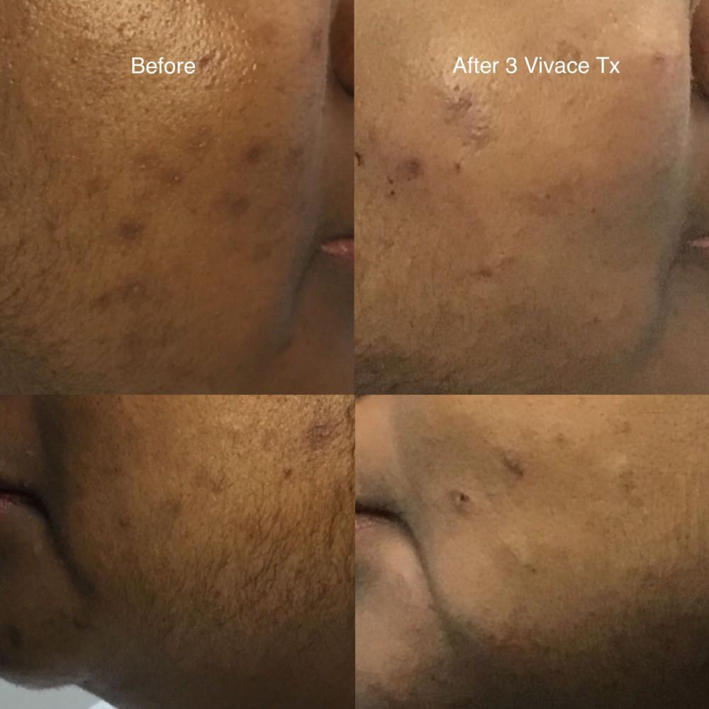Acne Scar Reduction: Revive Medical Spa: Medical Spa
