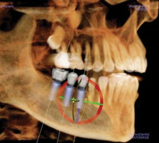 Guided dental implants with 3d scan