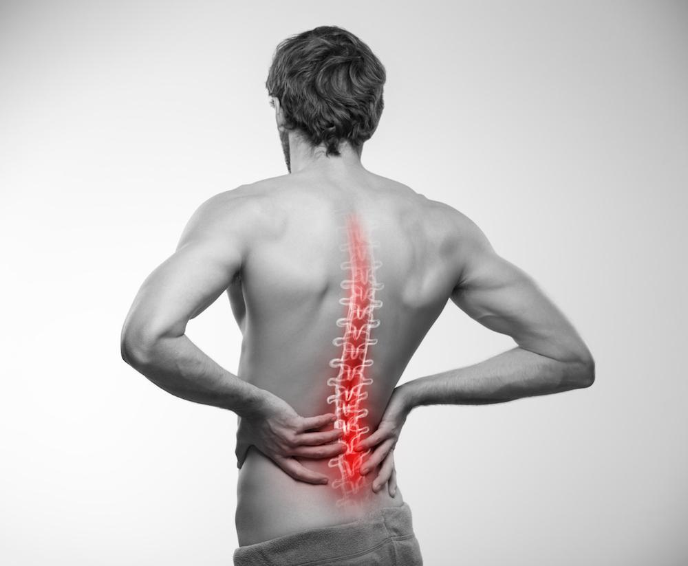 A spinal stimulator offers relief from chronic back pain.