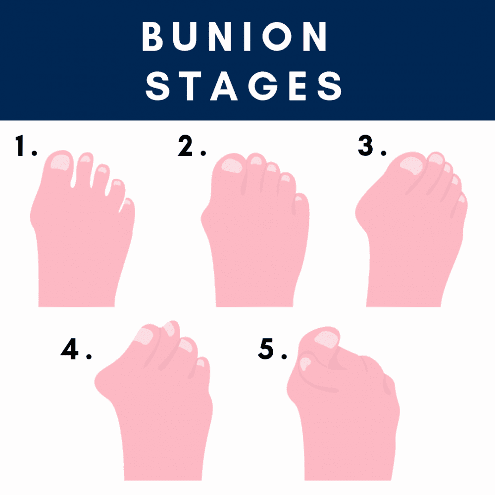 Stages of Bunion Progression