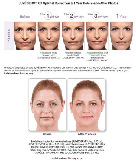Juvederm Ultra XC and Ultra Plus XC - Templeton, CA