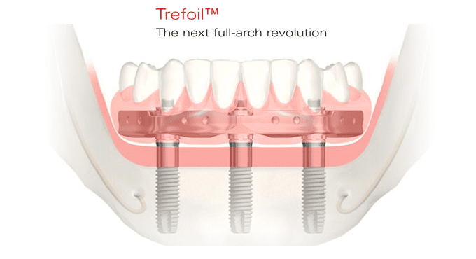 Trefoil full-arch dental implantsl