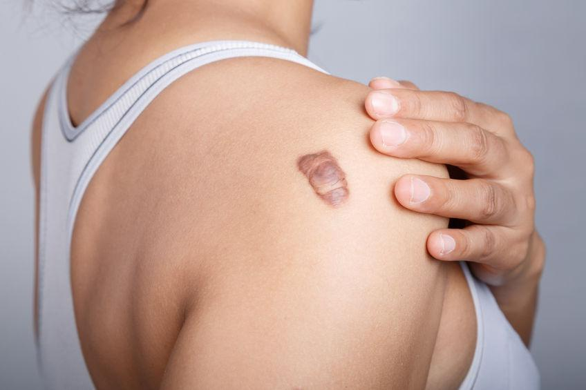 Keloid Removal: Don't Let Keloids Scar Your Skin and Your Confidence