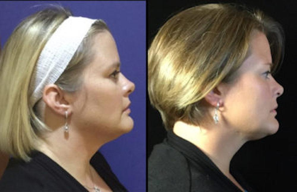 Ditch the Double Chin with Nonsurgical KybellaⓇ