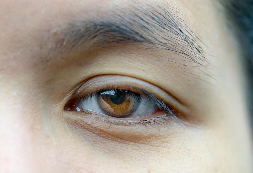 What Causes Ptosis and How is it Corrected?