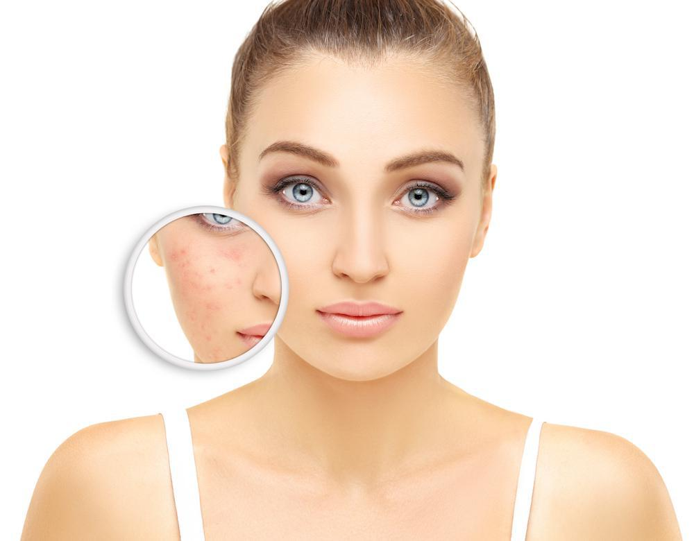 What Causes Adult Acne and How to Get Rid of it?