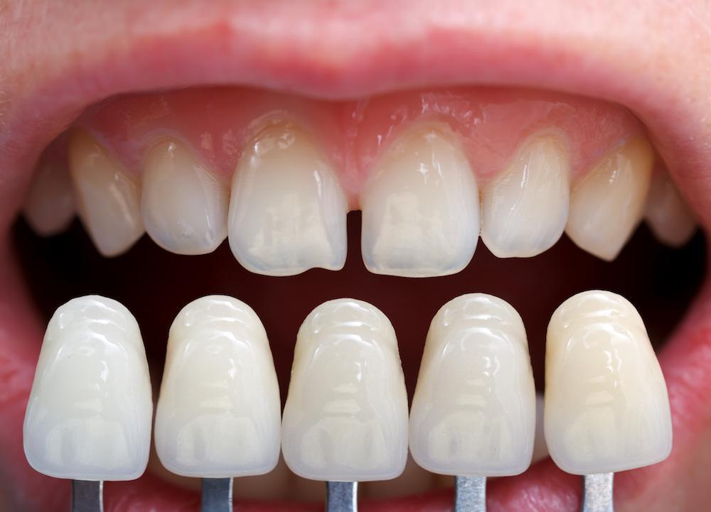 Solutions for a Chipped Tooth