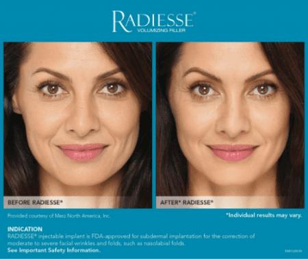 Radiesse - Ventura, CA: RKM Aesthetics and Wellness