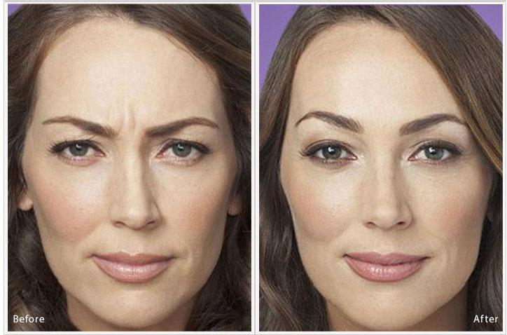 Botox Near Me | Simi Valley | Northridge | Moorpark