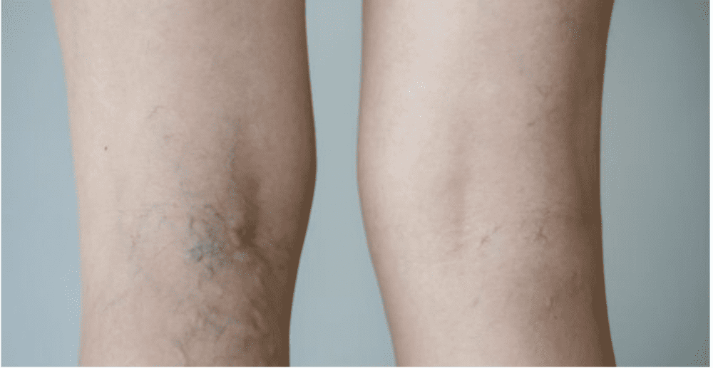 COMMON CAUSES OF DEEP VEIN THROMBOSIS: Thomas R. Wieters, MD: General and  Vascular Surgeon