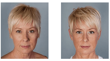 Before and After Gallery - Tustin, CA: Genesis Medical