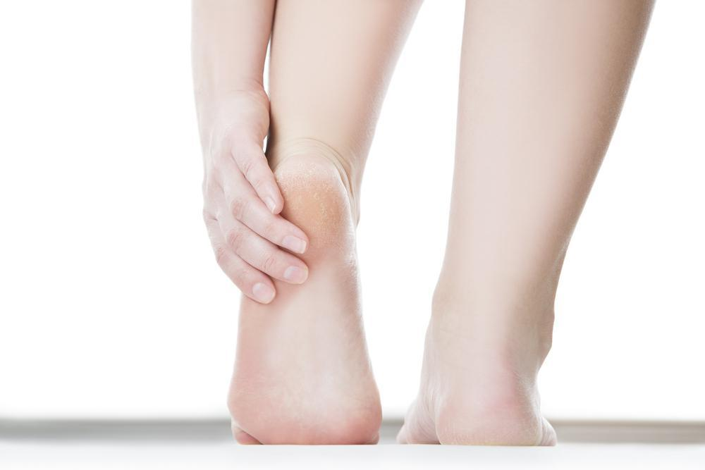 3 of the Most Common Risk Factors for Plantar Fasciitis