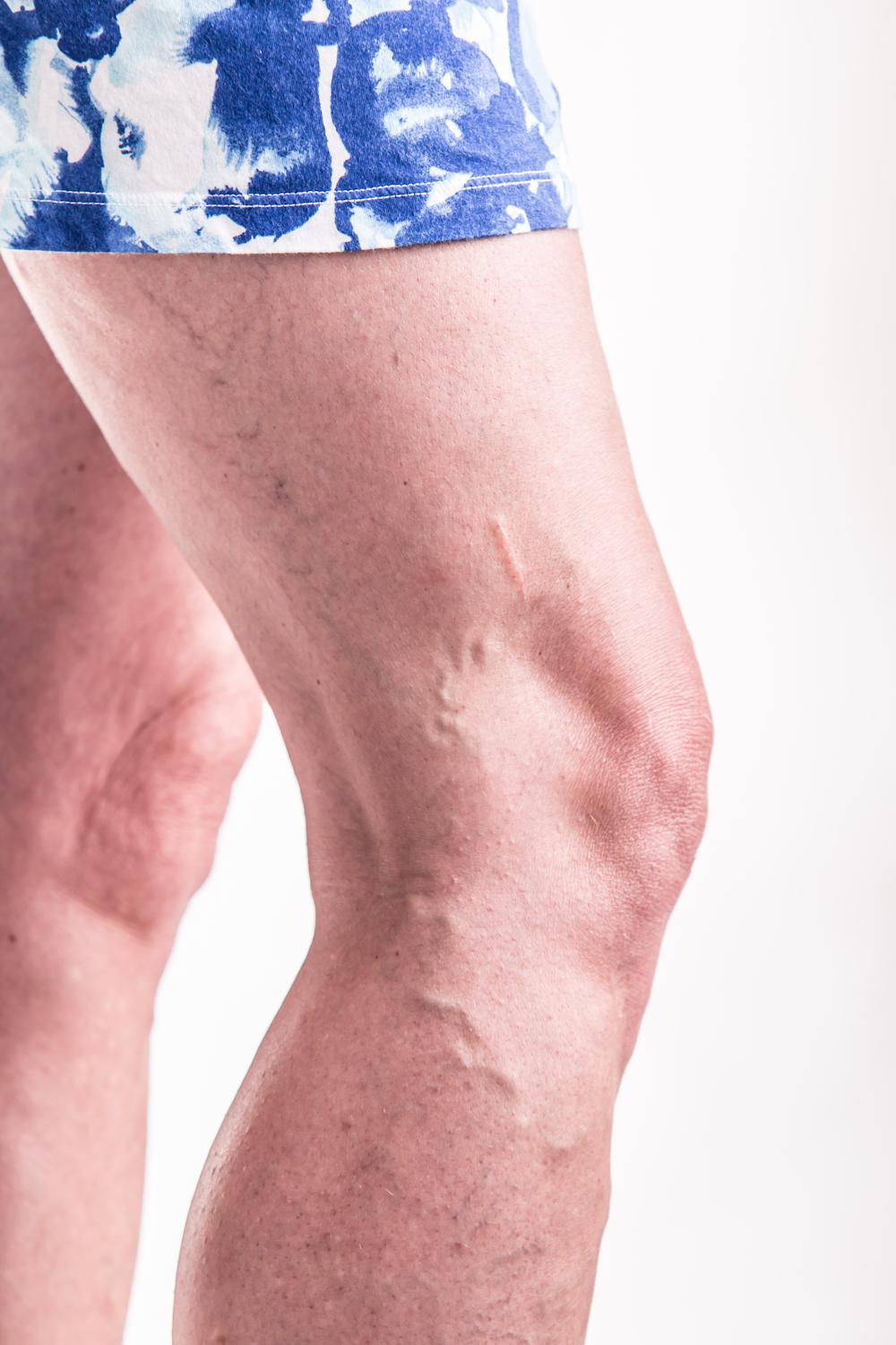 Why Some People Get Varicose Veins and Others Don't