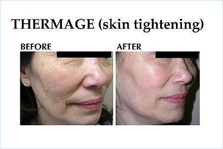 Thermage - Woodland Hills, CA & Beverly Hills, CA