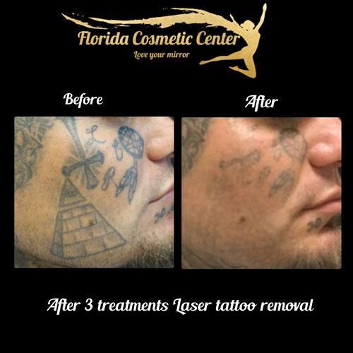 Tattoo Removal - Celebration, FL: Florida Cosmetic Center