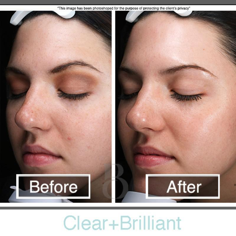 Clear and brilliant before and after