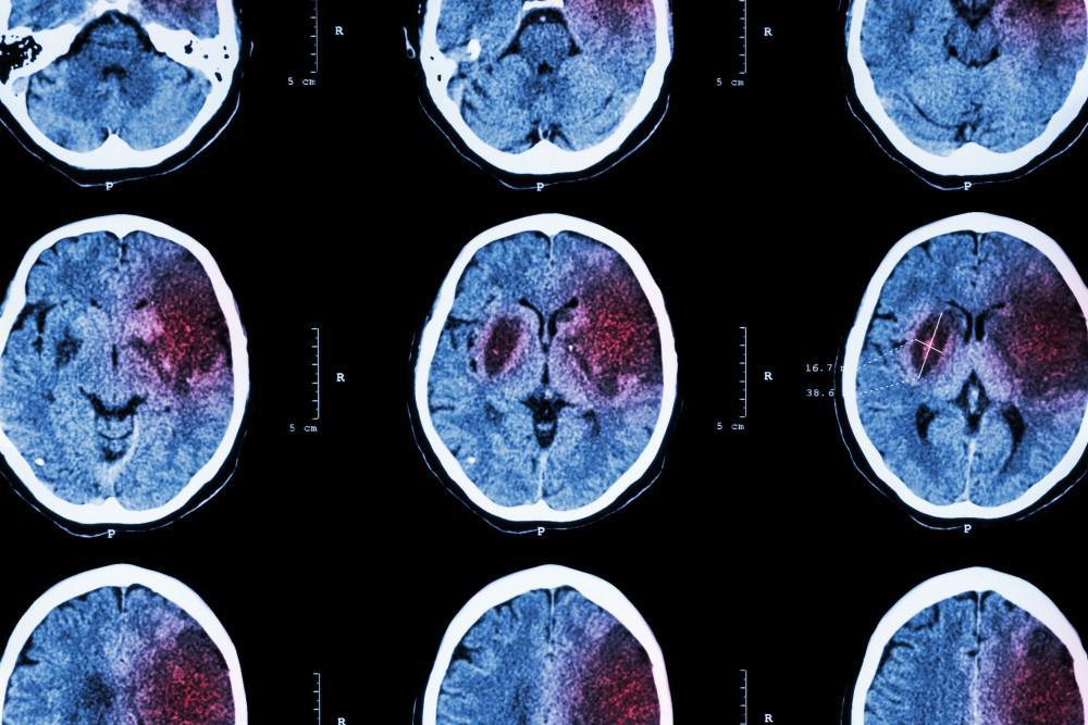 Ischemic Stroke Brain Scans