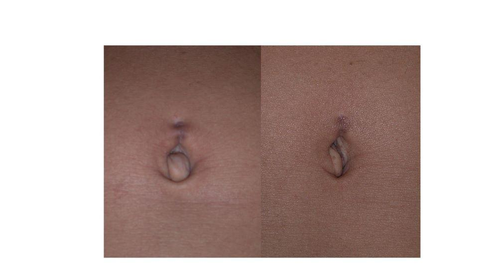 A small umbilical hernia (and belly button ring scar) before and after photos