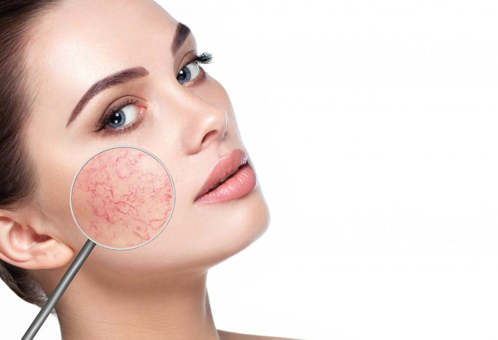 How to Avoid a Rosacea Flare-Up?