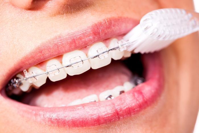 Braces  Lansdowne Orthodontics