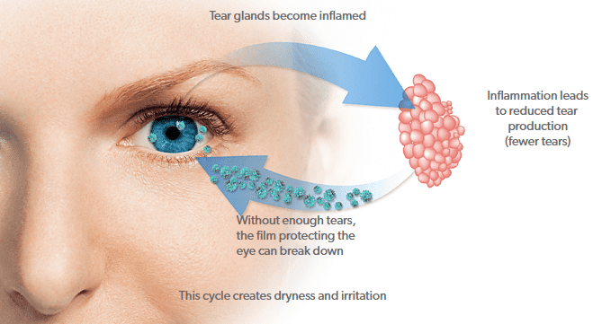 Restasis® - Jenison, MI: Lifetime Eyecare