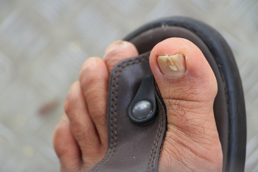 Why You Should Never Let Toenail Fungus Go Untreated: Animas Foot ...